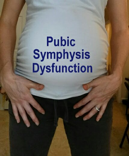 My Pubic Symphysis Dysfunction (PSD) Experience & Management