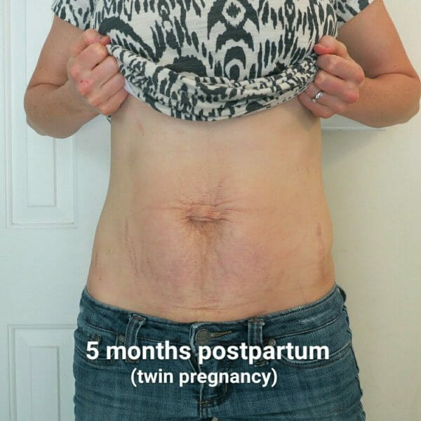 The Belly! 5 months postpartum after twins